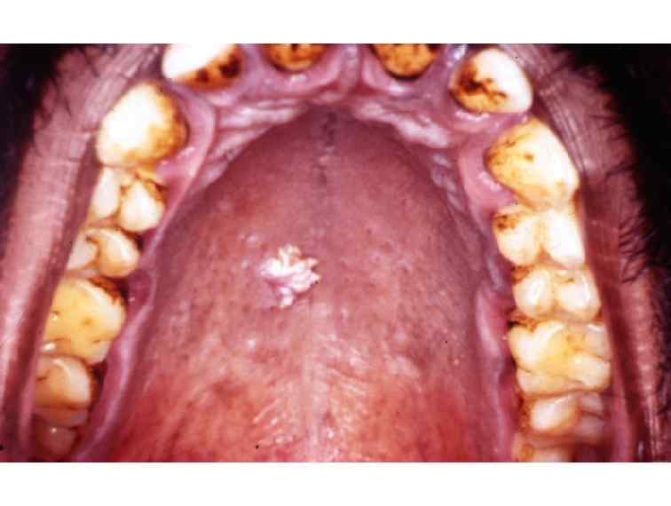 papilloma dental definition)