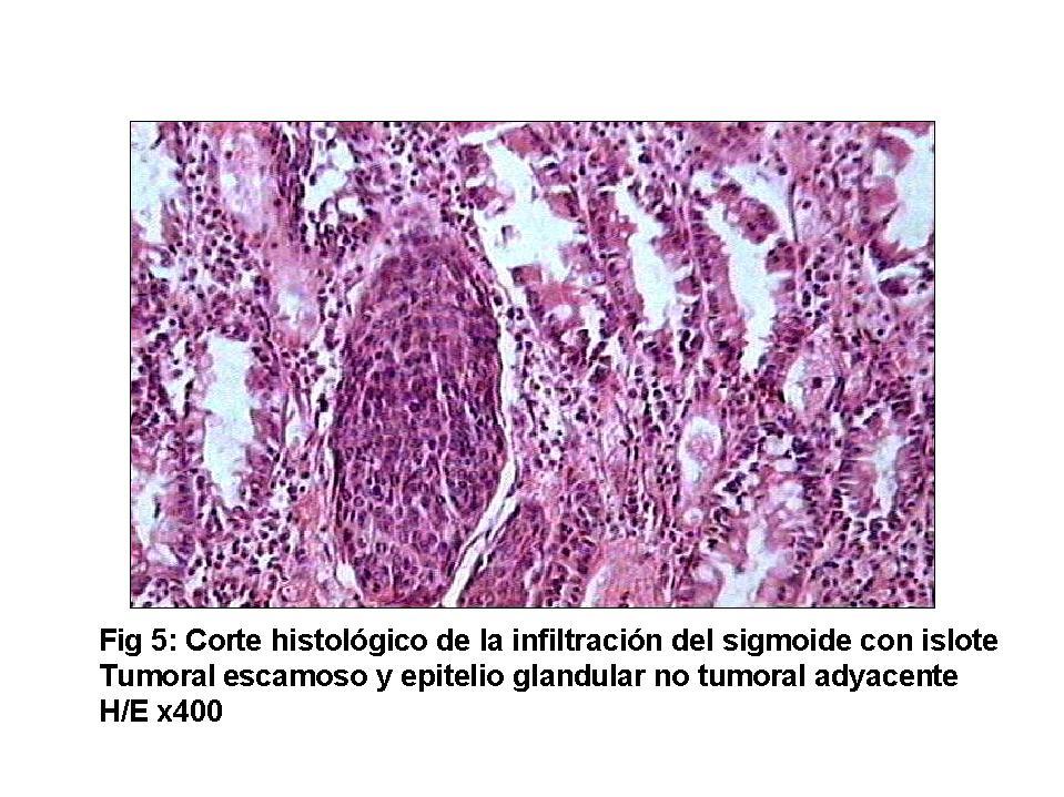 papilloma in colon