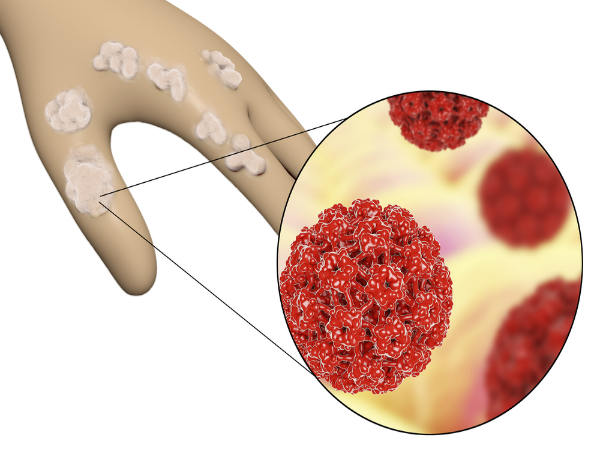 helminthic therapy crohns papilloma bowenoide