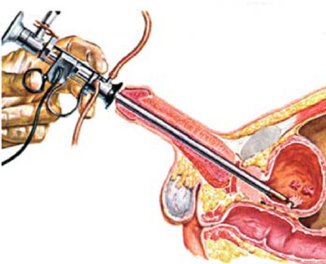 papilloma vescicale intervento chirurgico)