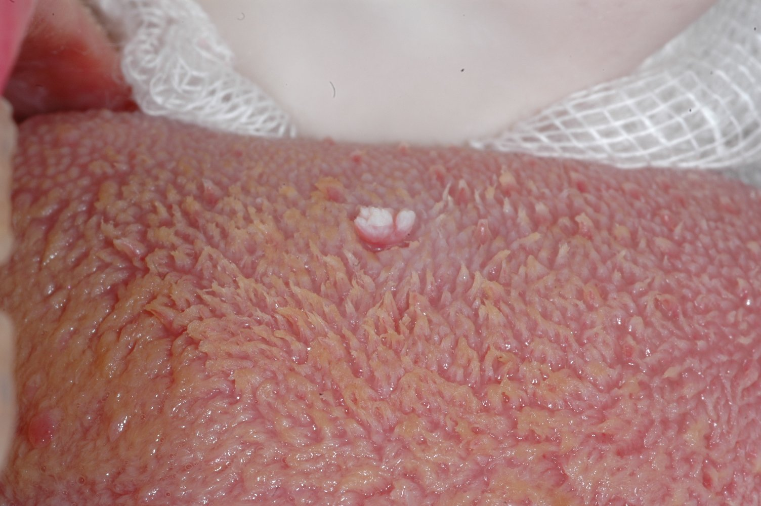 papilloma virus alla lingua hpv vaccine head neck cancer