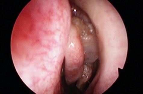 papilloma virus e naso