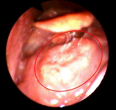 papilloma virus o tumore