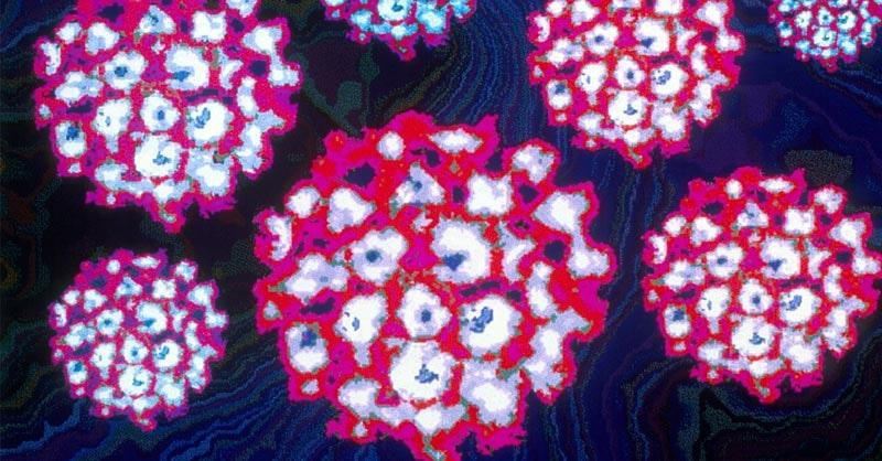 papiloma anorectal sirop impotriva parazitilor intestinali