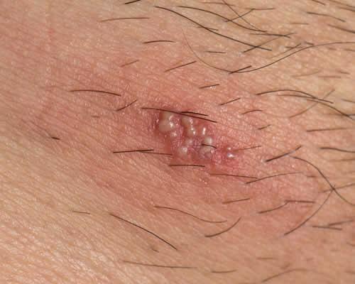 papilloma virus uomo alla vescica)