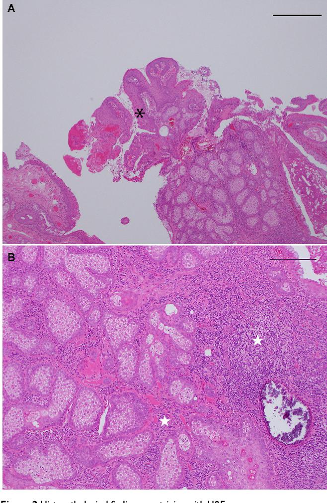 papilloma with hyperplasia)