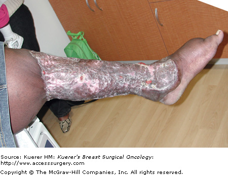 Lymphedema People ™ • View topic - Limfedemul