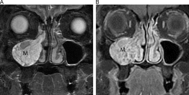 Polipoză de sinus frontal operată prin abord endoscopic transcranian