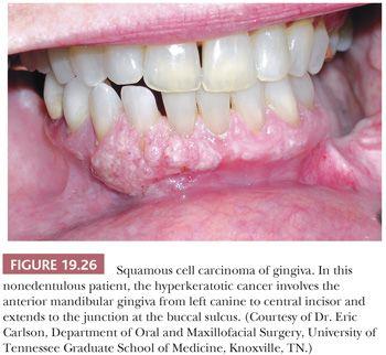 papillomas teeth)
