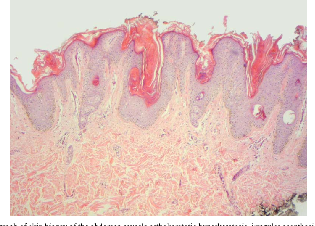 papillomatosis irregular acanthosis