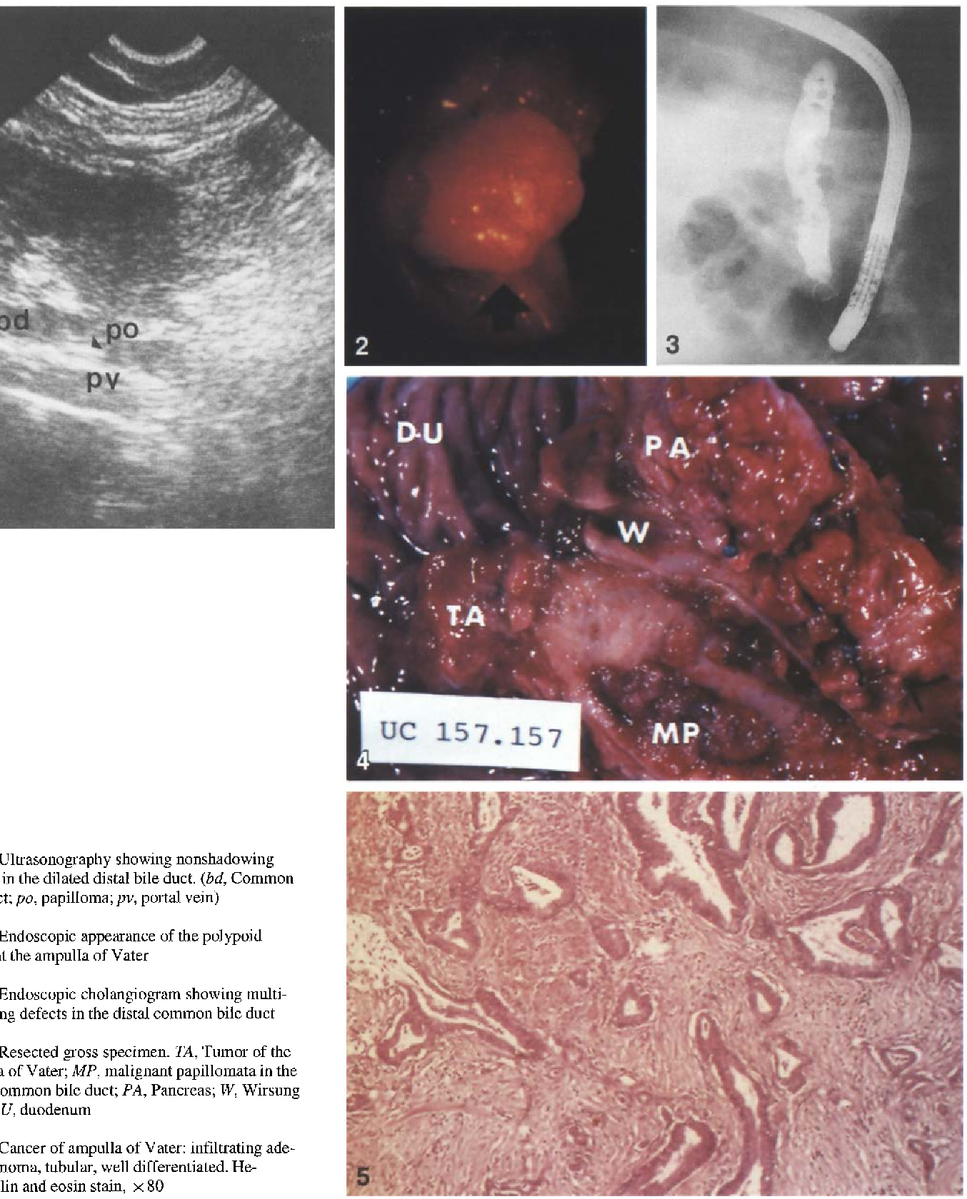 papillomatosis of duct