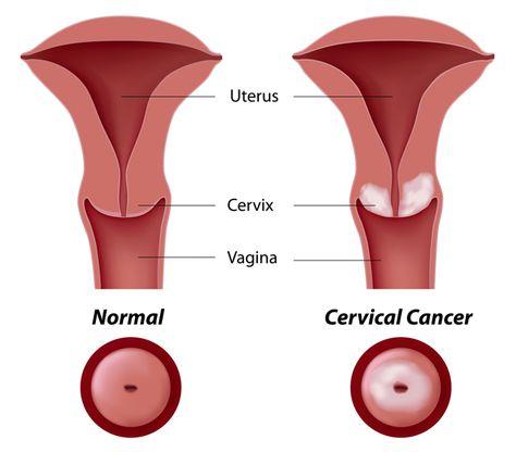 Infectia cu HPV iti afecteaza sau nu fertilitatea?