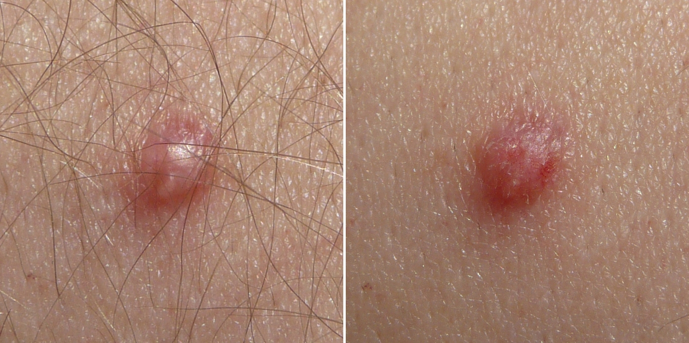 uterine cancer endometrial aggressive cancer weeks to live