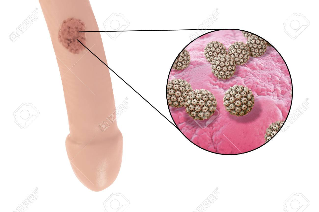 papillomavirus homme