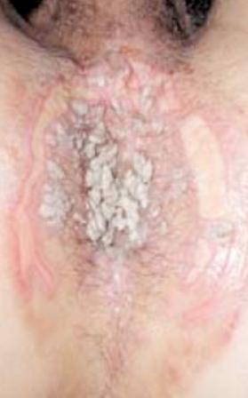 papillomavirus maladie venerienne i sintomi papilloma virus