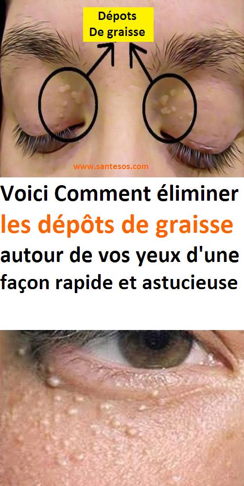 papillomavirus yeux)