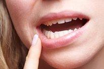 papiloma en la boca causas