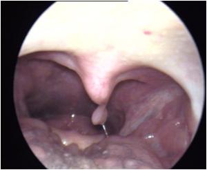 papiloma garganta benigno cancerul apendicular