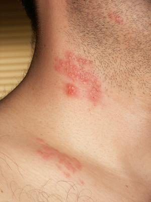 papiloma humano con herpes