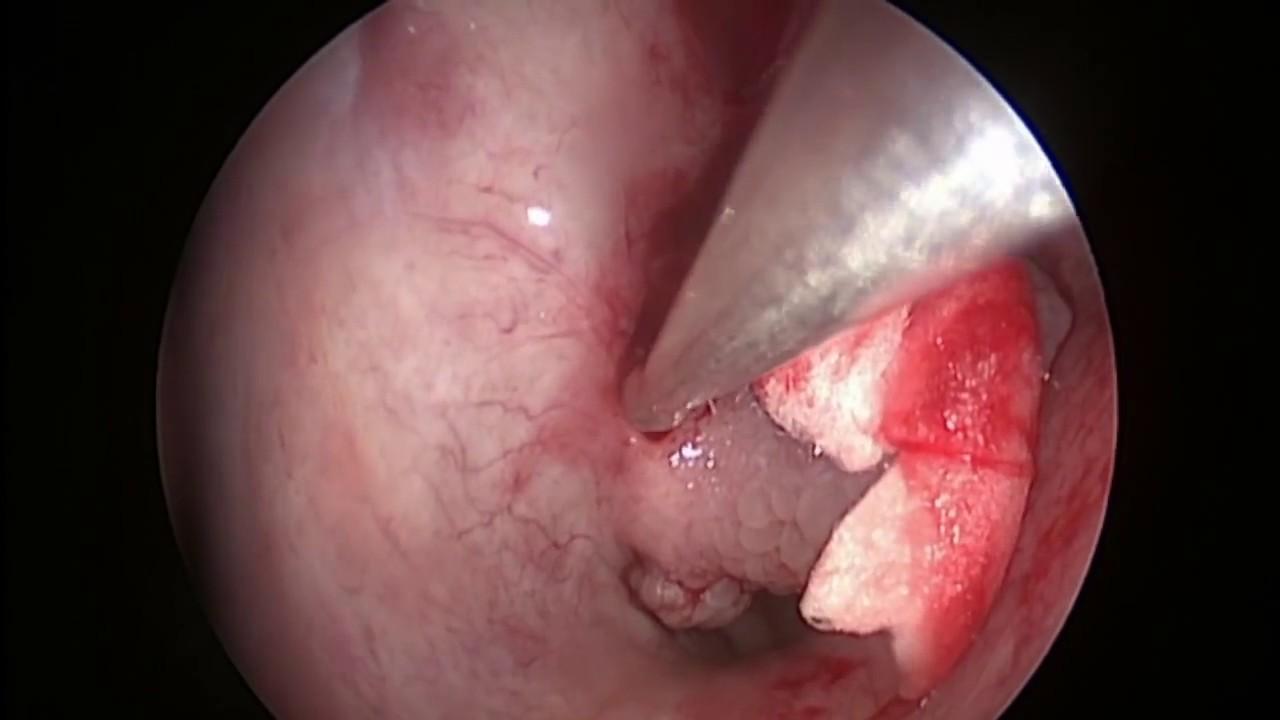 papiloma humano nasal)