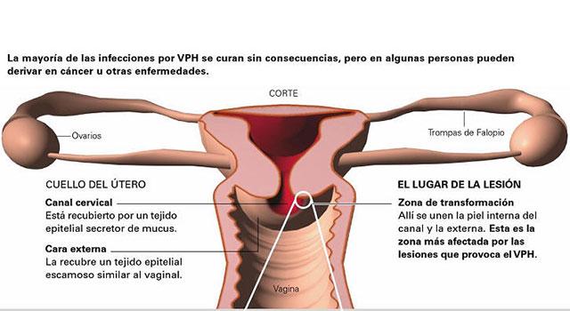 papiloma humano y embarazo)