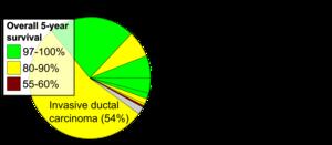 papiloma intraductal con carcinoma in situ
