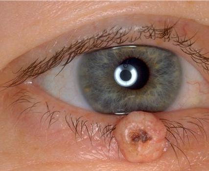 papiloma palpebral tratamiento hpv lingua contagio