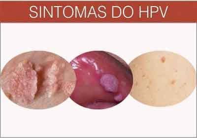 papiloma virus humano sintomas hpv entstehung ursachen