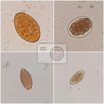 Parazitoze Paraziti oxiuri Enterobius vermicularis tratamente