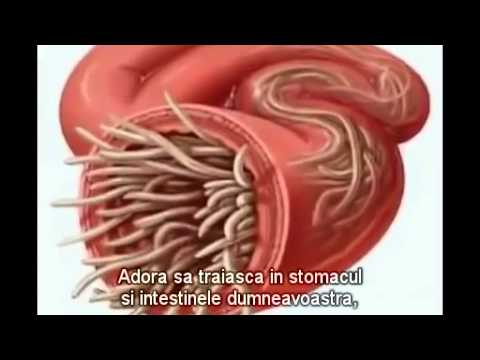 parazitii din corpul omenesc
