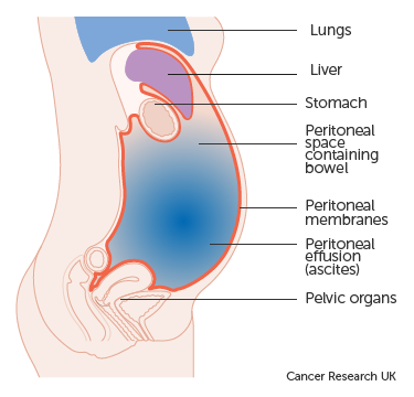 peritoneal cancer fluid drainage)