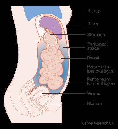 peritoneal cancer risk)
