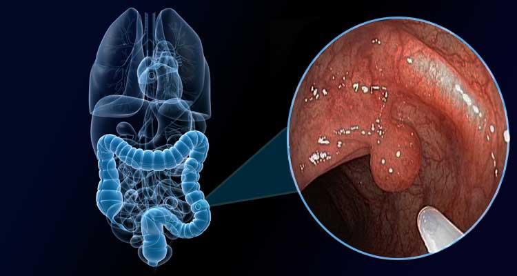 que es cancer intestinal