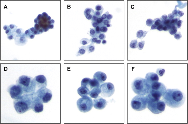 renal cancer urine cytology