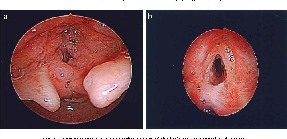 respiratory papillomatosis remission)