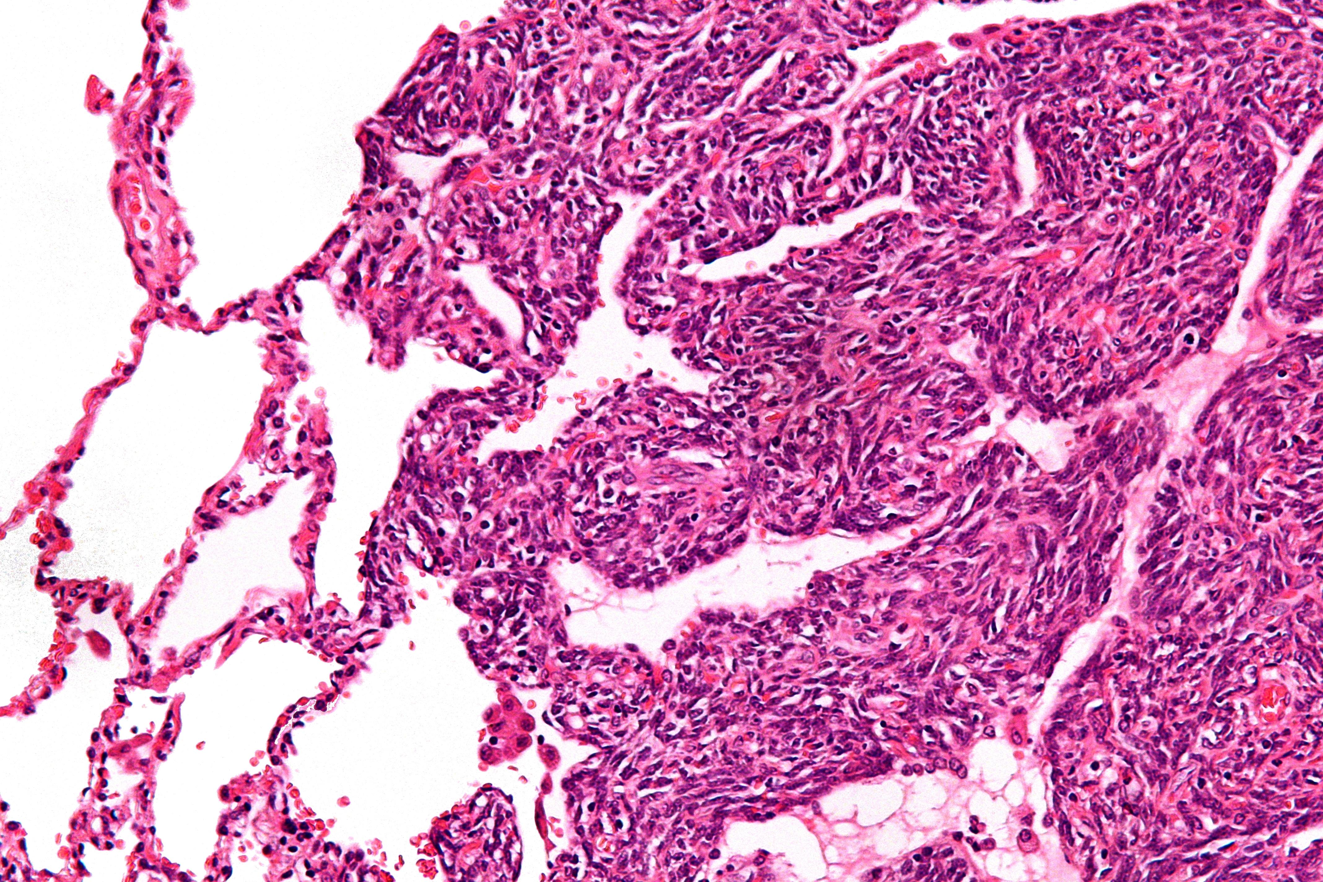sarcoma cancer hindi papilloma virus definition biology