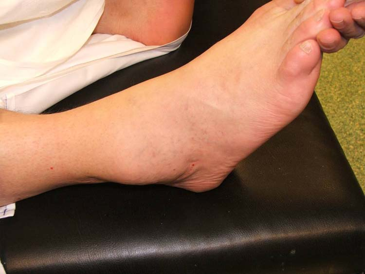 sarcoma cancer in ankle