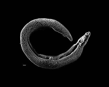 schistosomiasis origin)