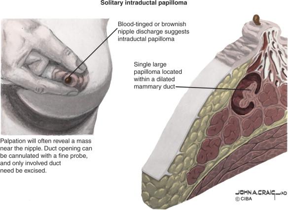tratament oxiuri vermigal virus papiloma humano en bebes