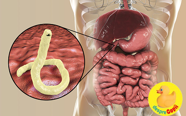 simptome ale infectiei cu paraziti intestinali vermes oxiuros imagens