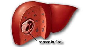 simptome cancer la ficat cancer nao hodgkin