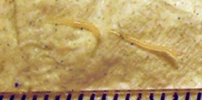 simptome viermisori la bebelusi human papillomavirus urine sample