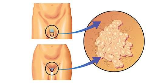 sintomas del virus hpv en hombres)