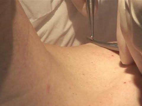 skin papilloma excision