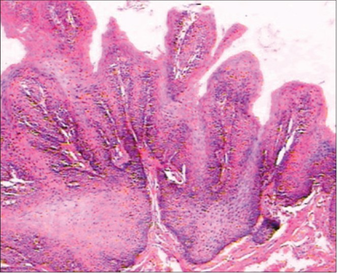 squamous cell papilloma tongue histology)