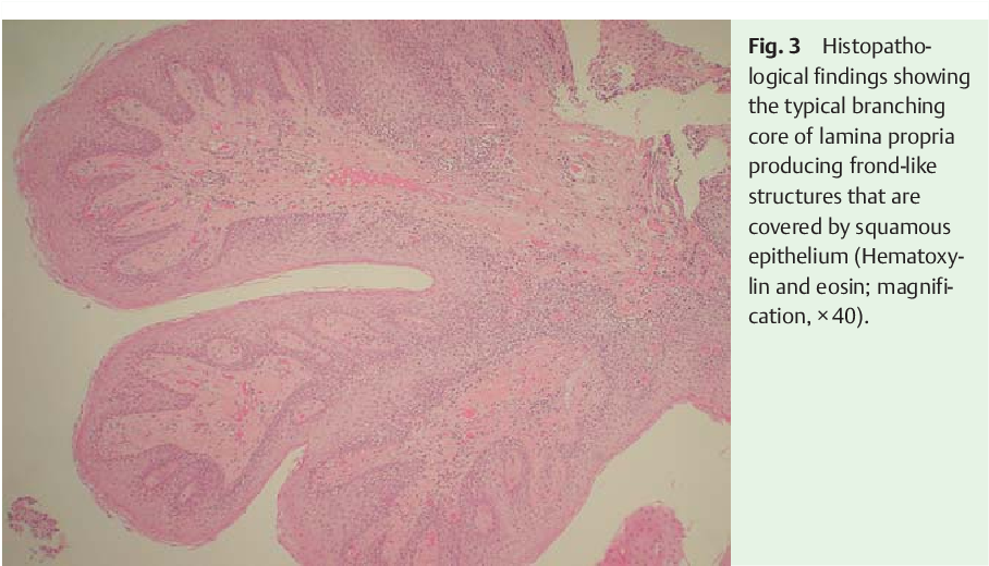 squamous papilloma esophagus causes)