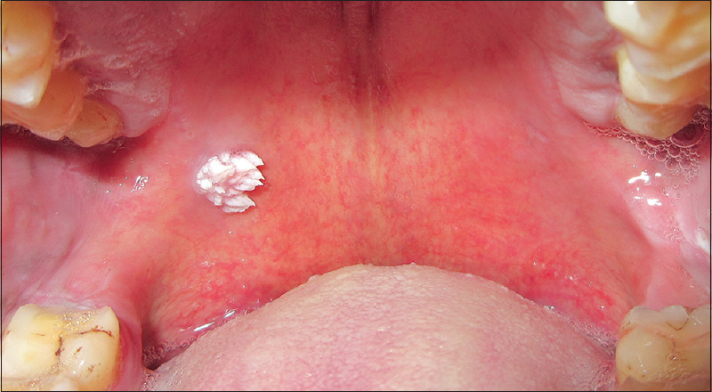 squamous papilloma in tongue
