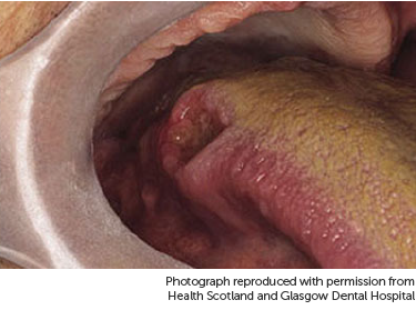 squamous papilloma tongue nhs