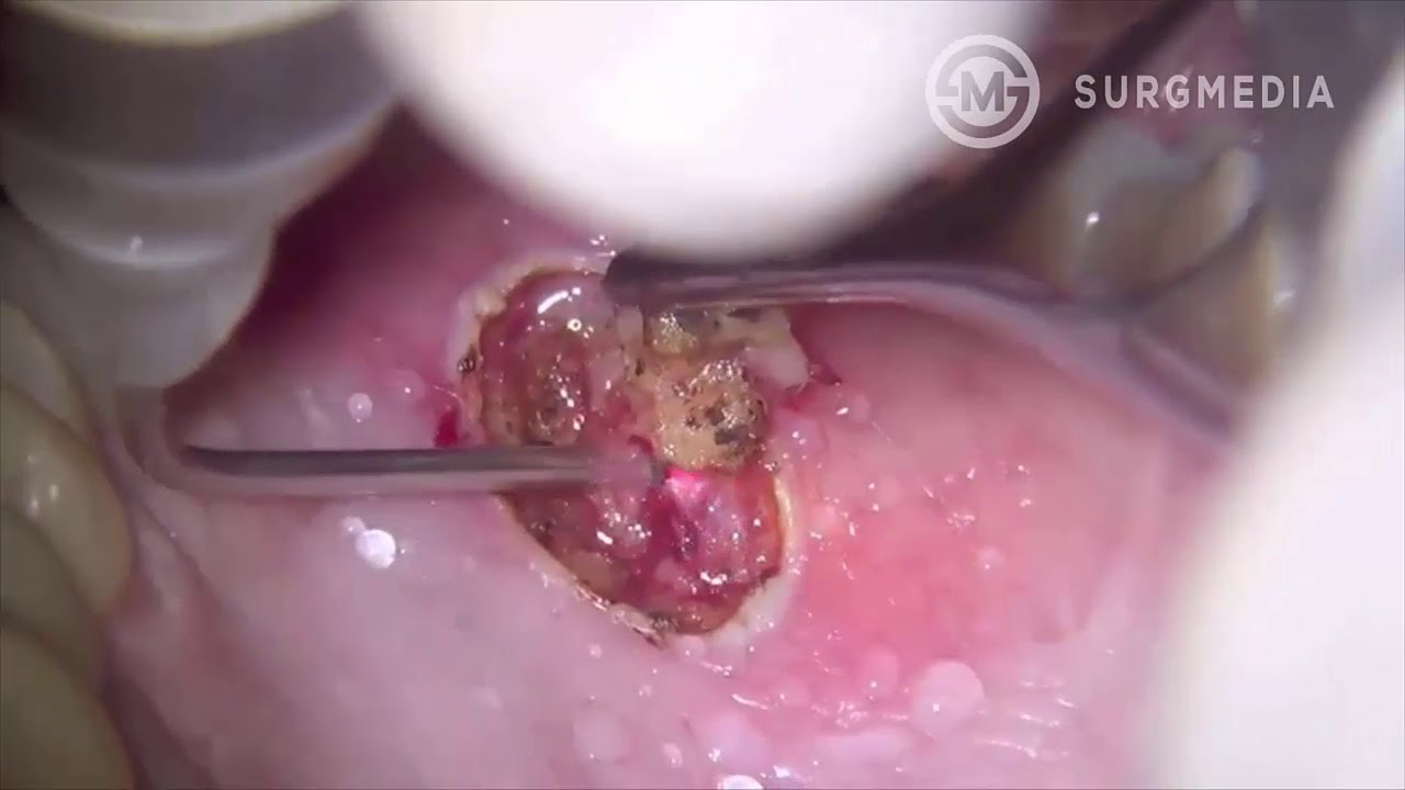 squamous papilloma tongue removal
