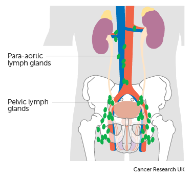 testicular cancer which lymph nodes)